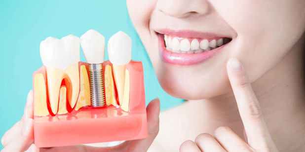 Why Are Dental Implants Needed